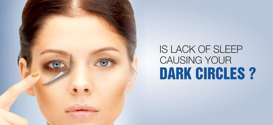 Is Lack Of Sleep Causing Your Dark Circles ?
