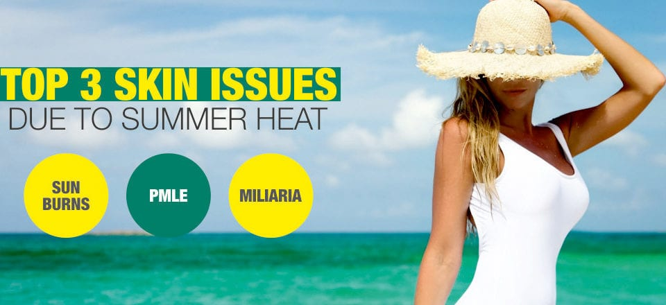 Top 3 skin issues due to summer heat
