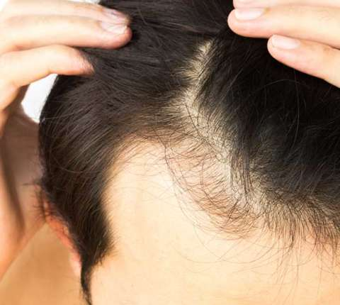 5 Treatments available in the market for Hair Loss Problem