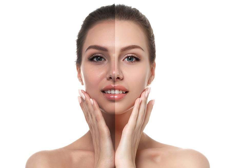8 Things About Skin Whitening Treatment You May Not Have Known